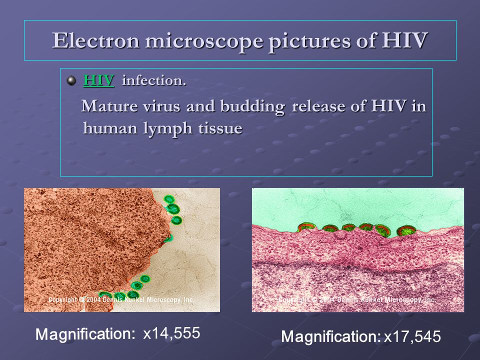 Electron microscope pictures of HIV