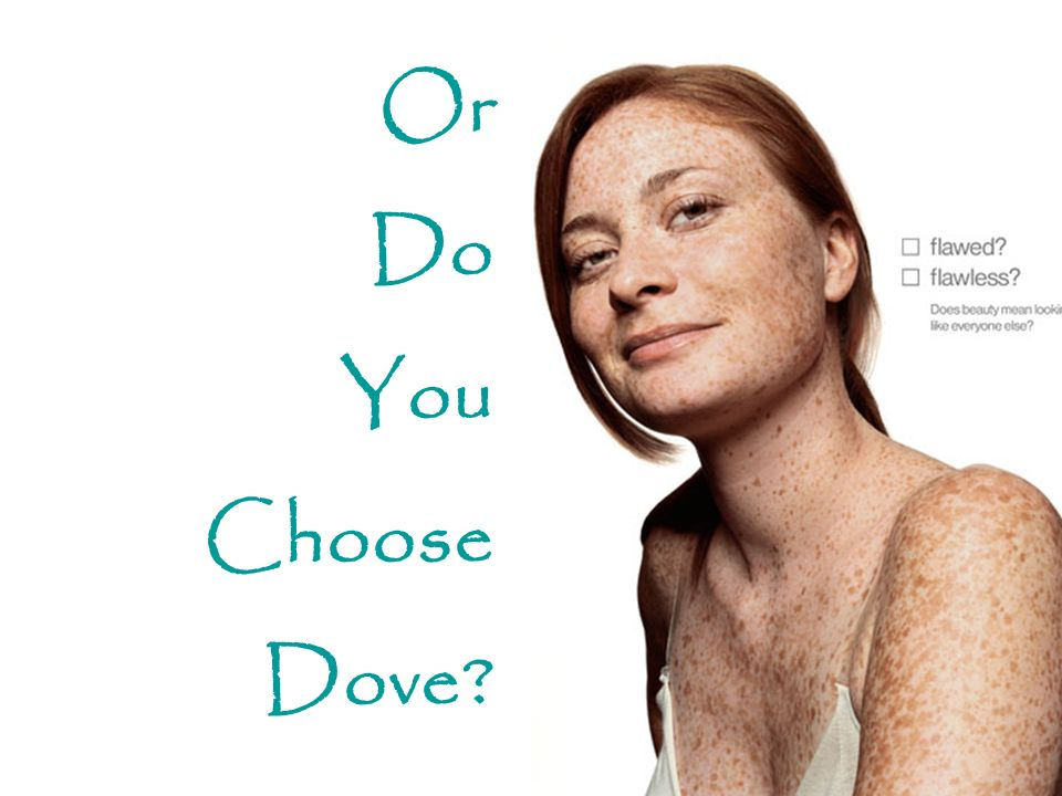 Or Do You Choose Dove