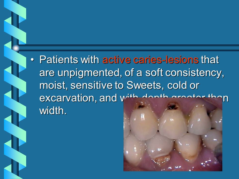 Patients with active caries-lesions that are unpigmented, of a soft consistency, moist, sensitive to Sweets, cold or excarvation, and with depth greater than width.