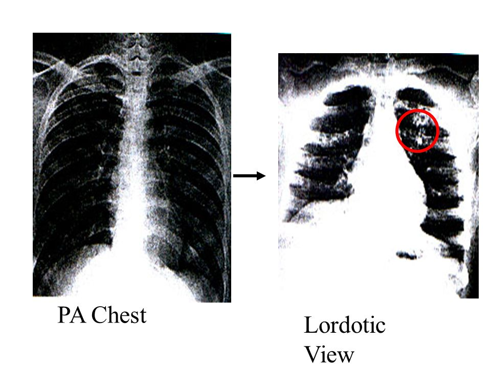 PA Chest Lordotic View