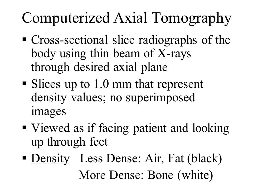 Computerized Axial Tomography