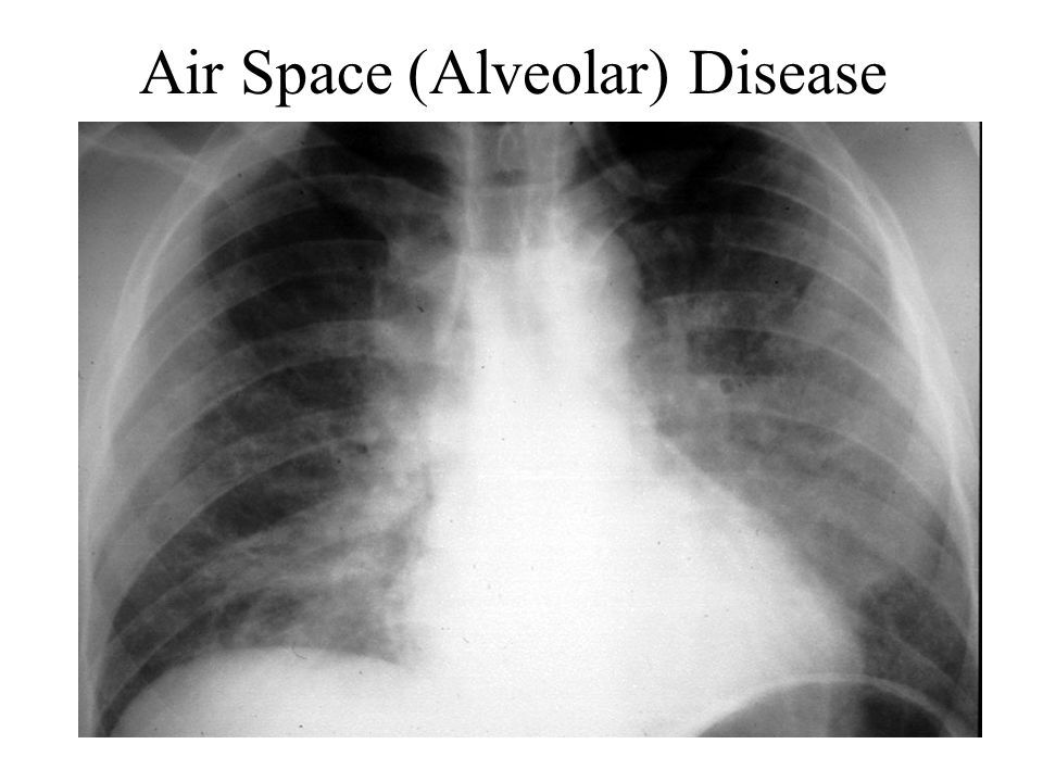 Air Space (Alveolar) Disease