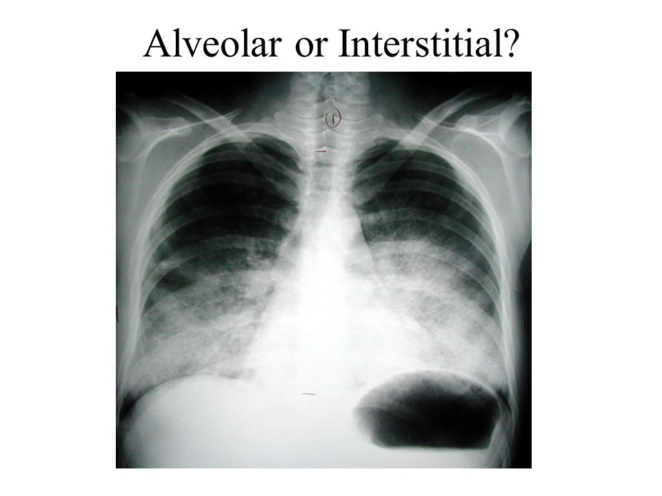 Alveolar or Interstitial