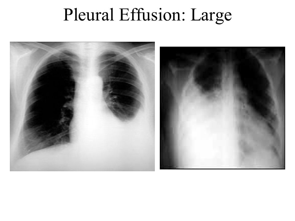 Pleural Effusion: Large