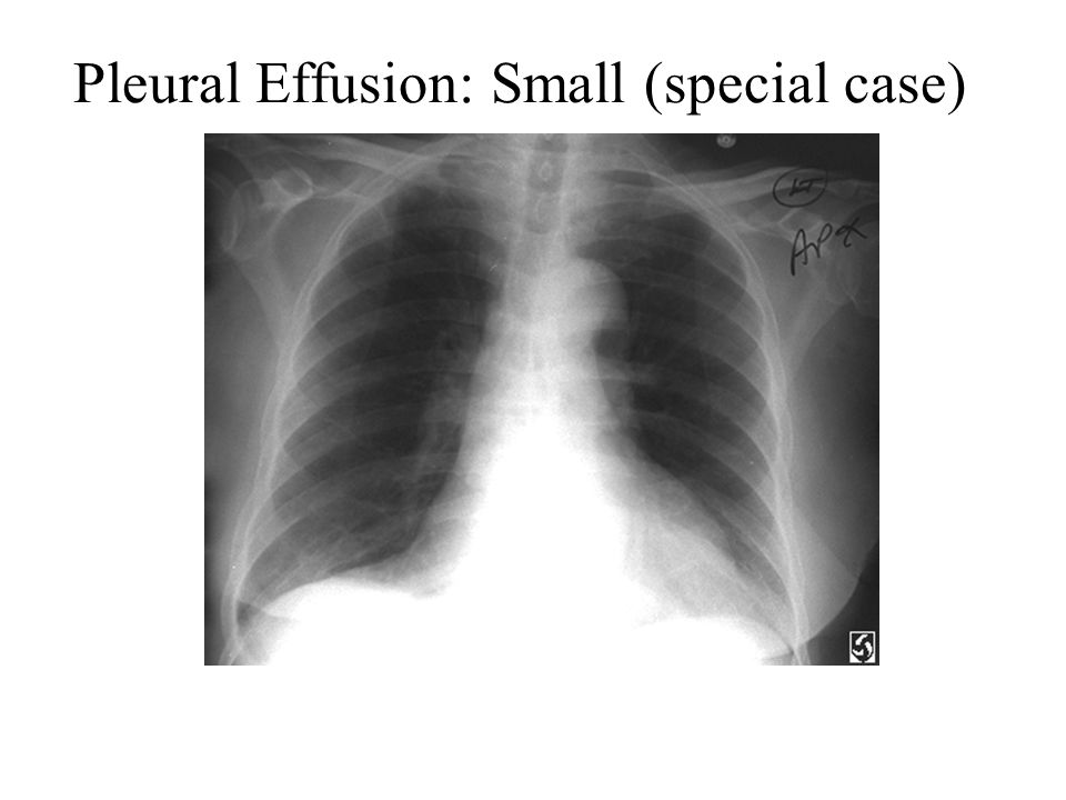Pleural Effusion: Small (special case)