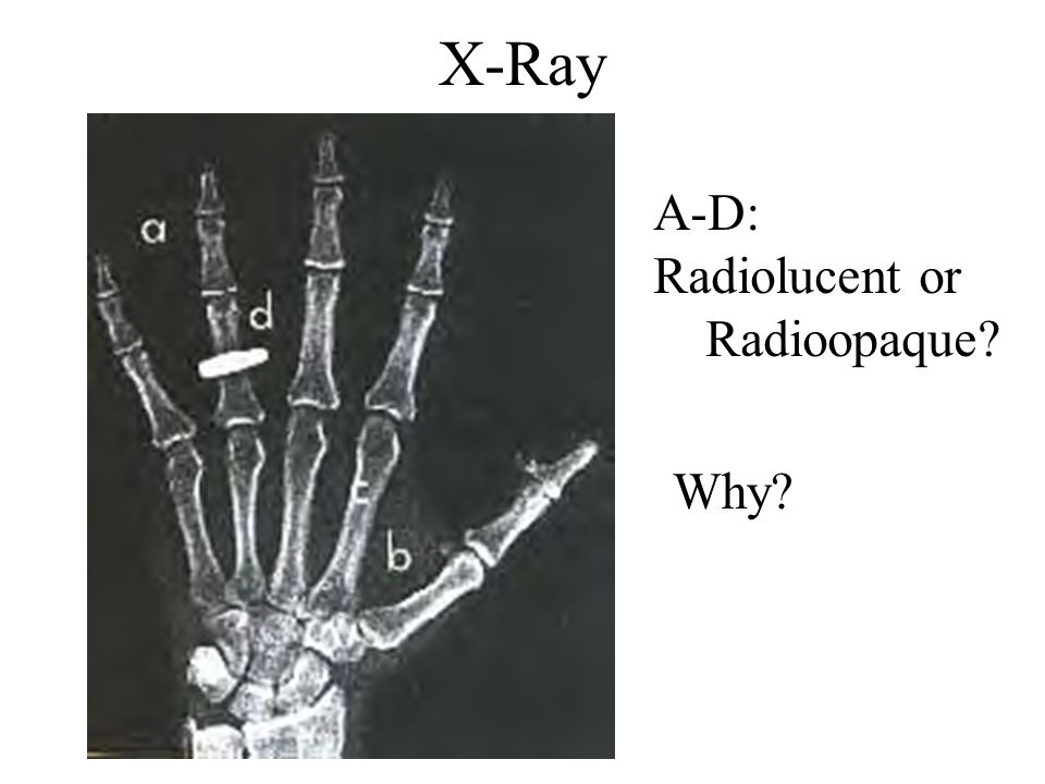 X-Ray A-D: Radiolucent or Radioopaque Why