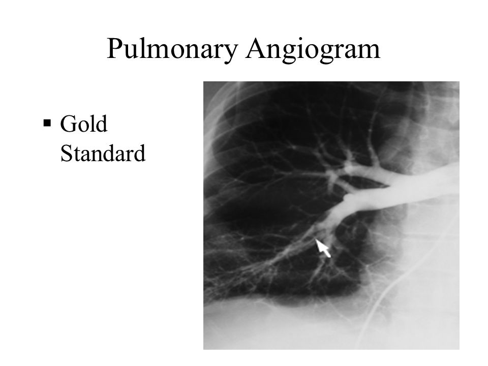 Pulmonary Angiogram Gold Standard