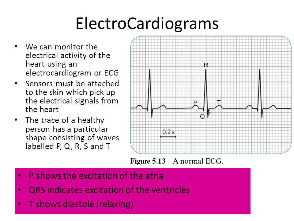 ElectroCardiograms P shows the excitation of the atria