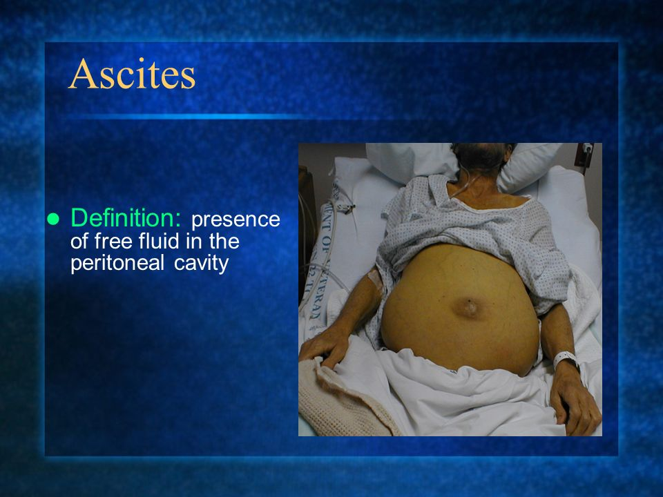 Ascites Definition: presence of free fluid in the peritoneal cavity