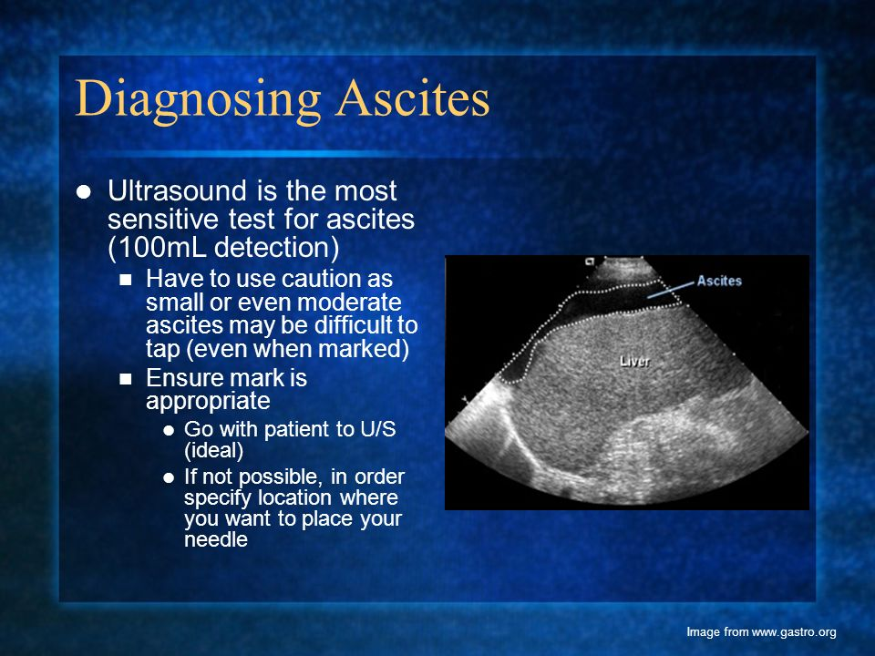 Diagnosing Ascites Ultrasound is the most sensitive test for ascites (100mL detection)