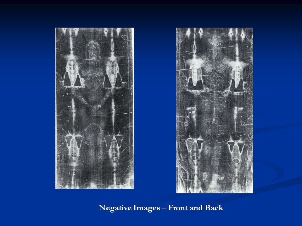 Negative Images – Front and Back