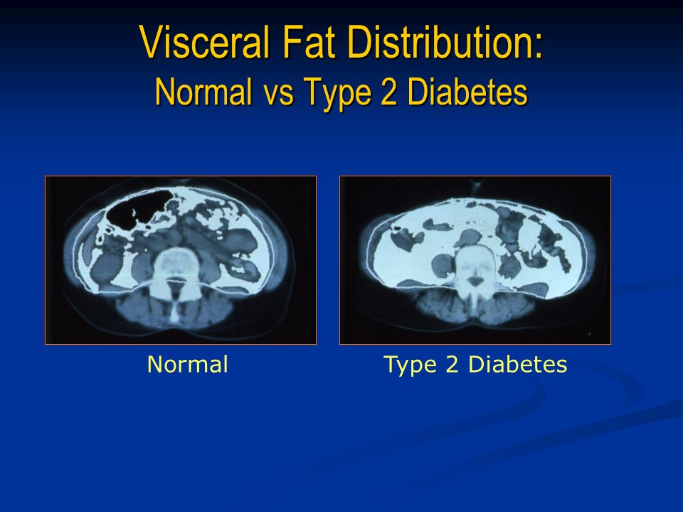 Visceral Fat Distribution: Normal vs Type 2 Diabetes