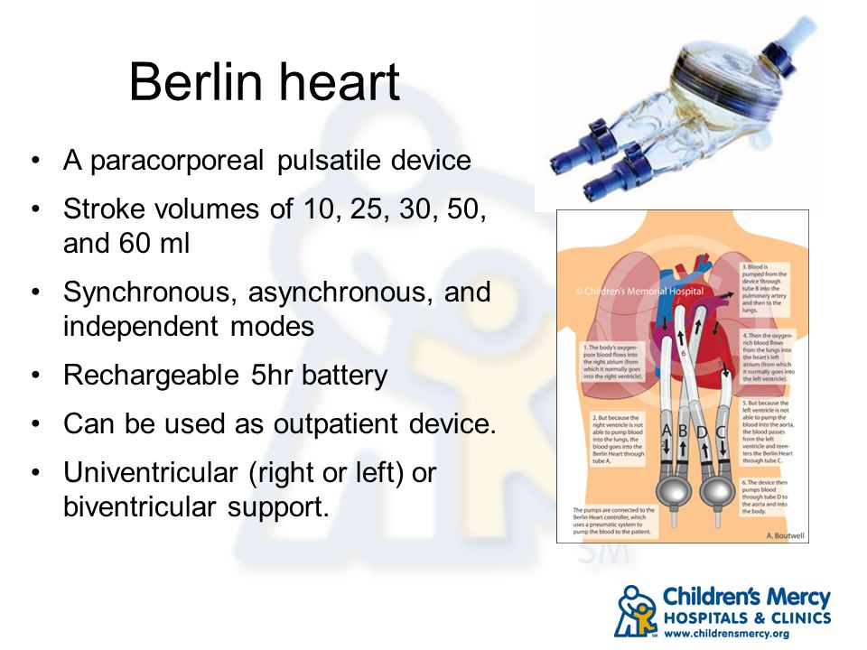 Berlin heart A paracorporeal pulsatile device