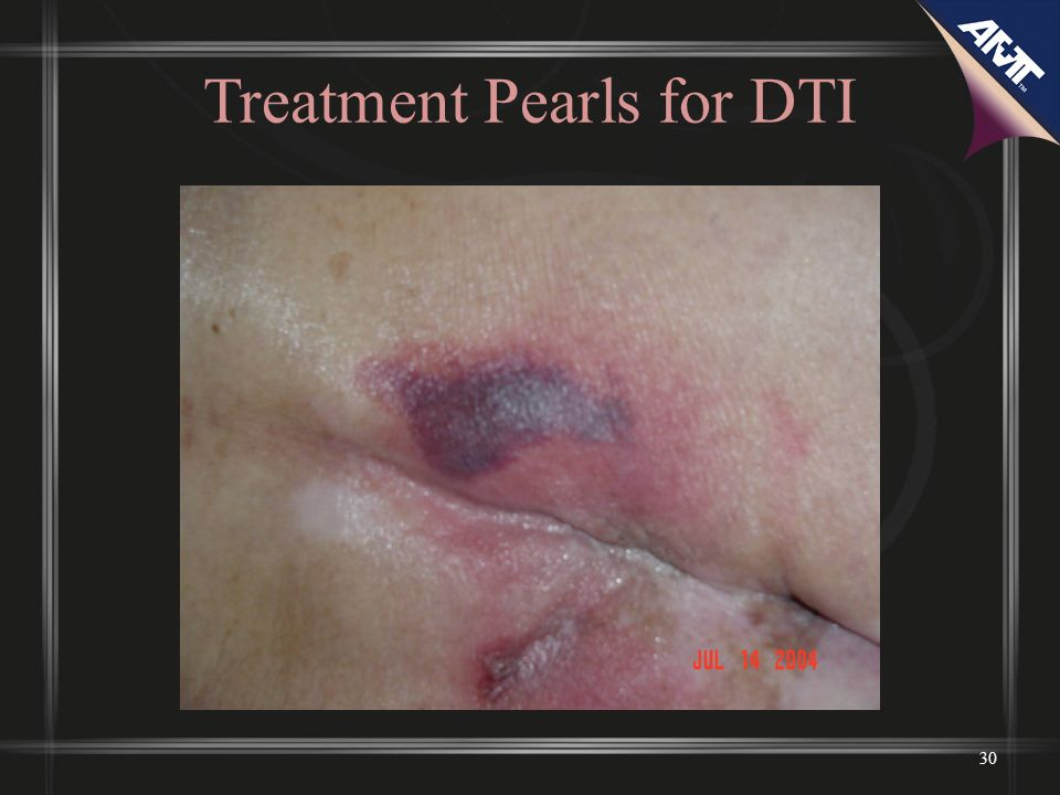 Treatment Pearls for DTI