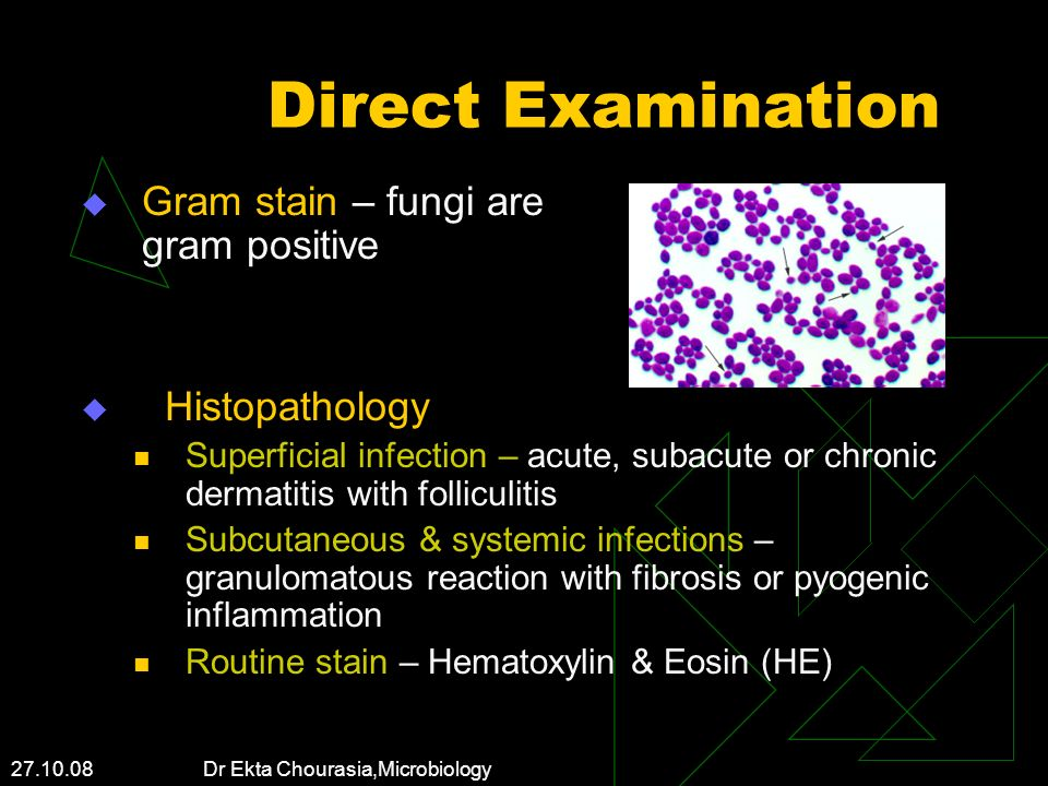 Direct Examination Gram stain – fungi are gram positive Histopathology