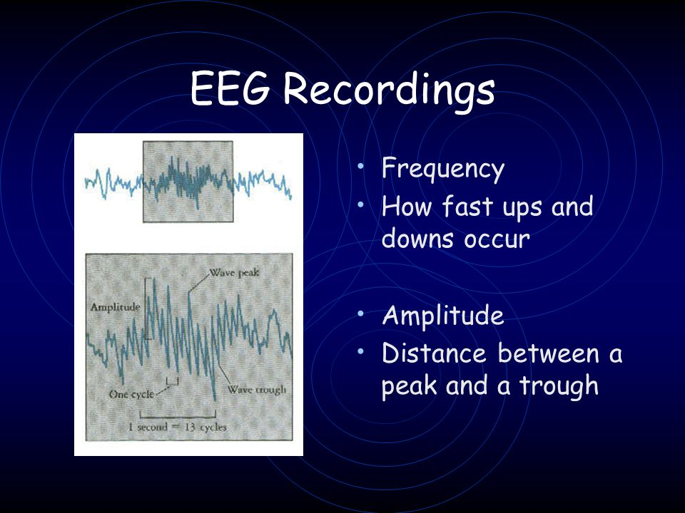 EEG Recordings Frequency How fast ups and downs occur Amplitude