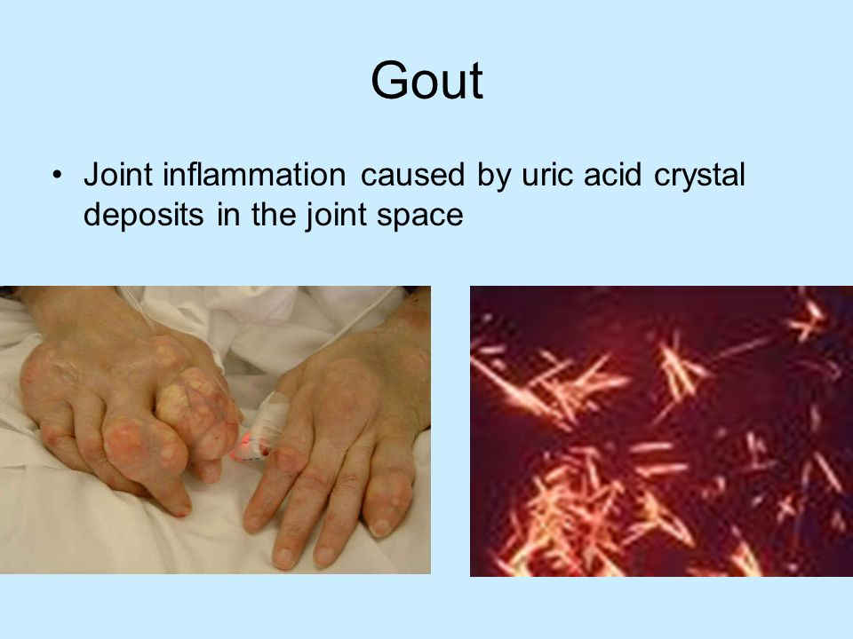 Gout Joint inflammation caused by uric acid crystal deposits in the joint space.
