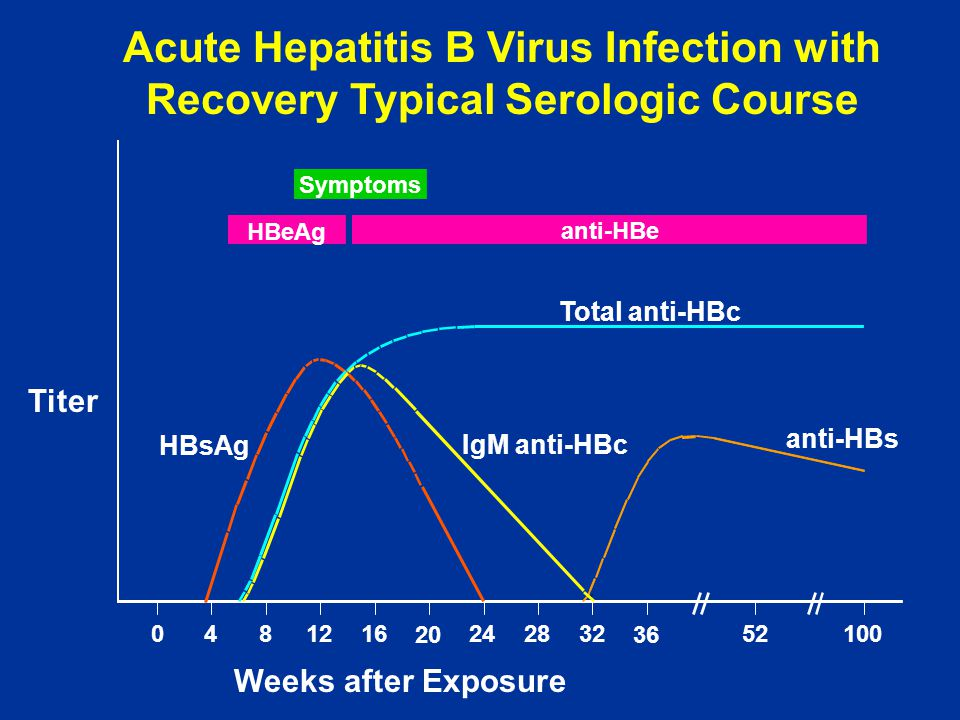 Acute Hepatitis B Virus Infection with Recovery Typical Serologic Course