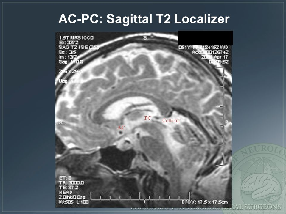 AC-PC: Sagittal T2 Localizer