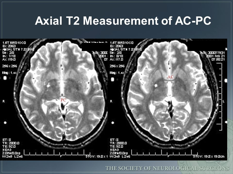 Axial T2 Measurement of AC-PC