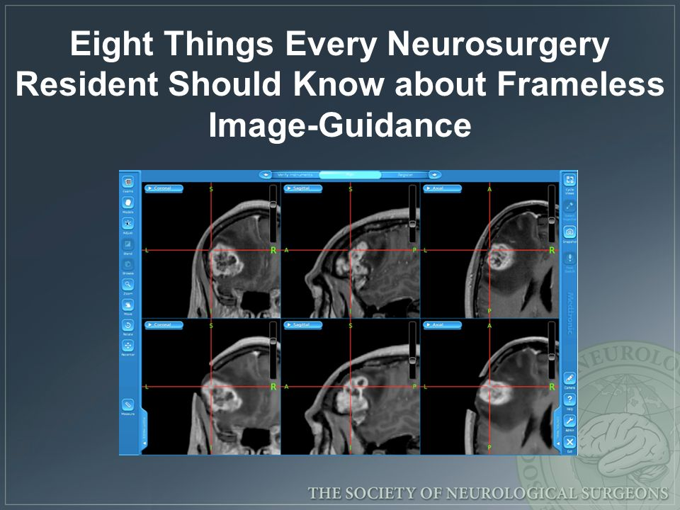 Eight Things Every Neurosurgery Resident Should Know about Frameless Image-Guidance