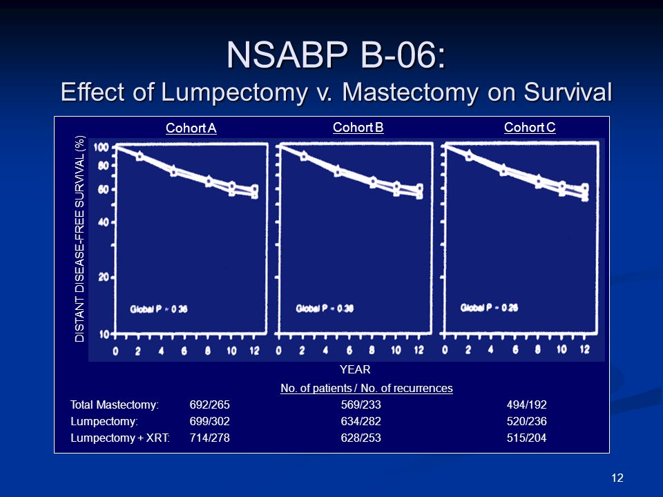NSABP B-06: Effect of Lumpectomy v. Mastectomy on Survival
