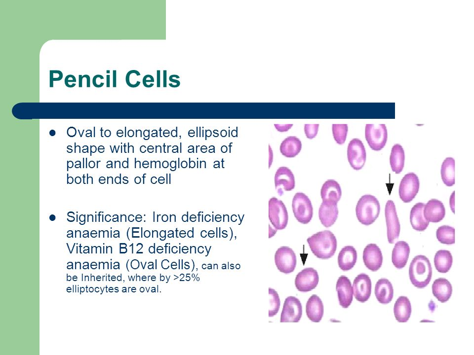 Pencil Cells Oval to elongated, ellipsoid shape with central area of pallor and hemoglobin at both ends of cell.
