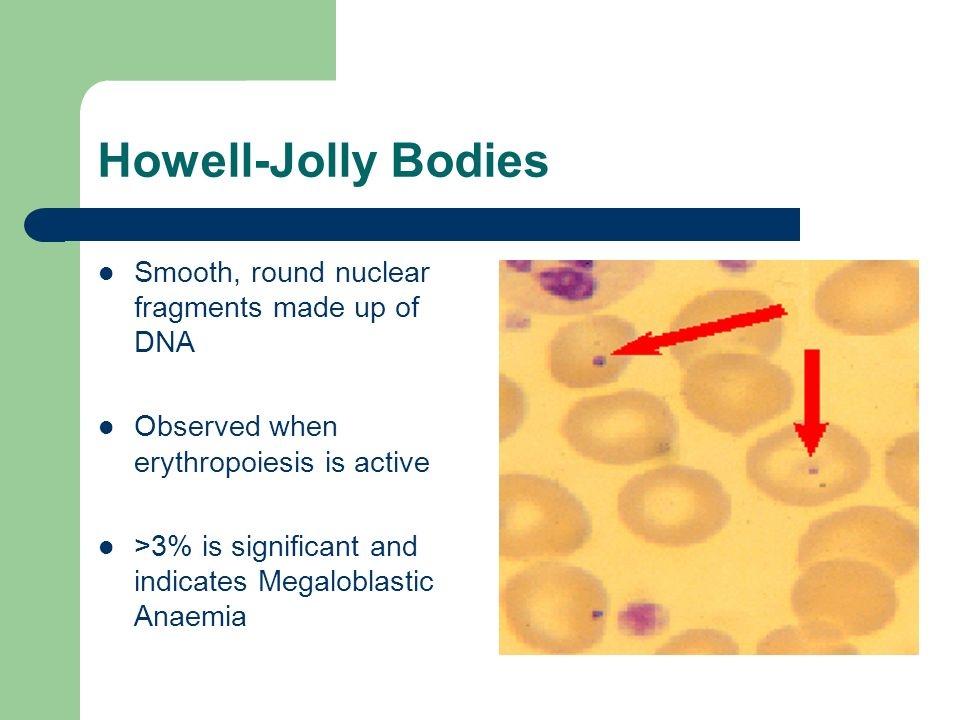 Howell-Jolly Bodies Smooth, round nuclear fragments made up of DNA