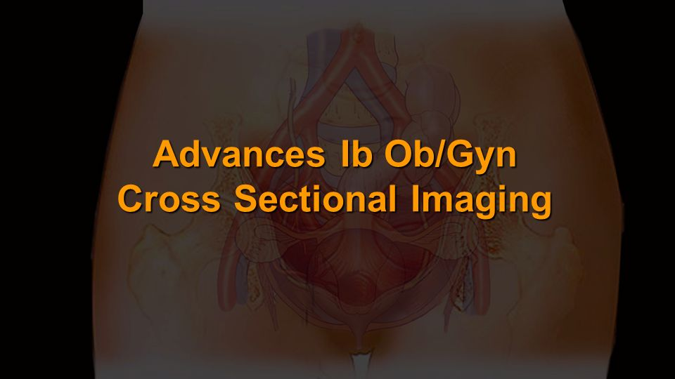 Advances Ib Ob/Gyn Cross Sectional Imaging