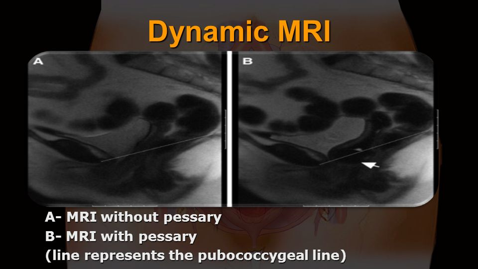 Dynamic MRI A- MRI without pessary B- MRI with pessary