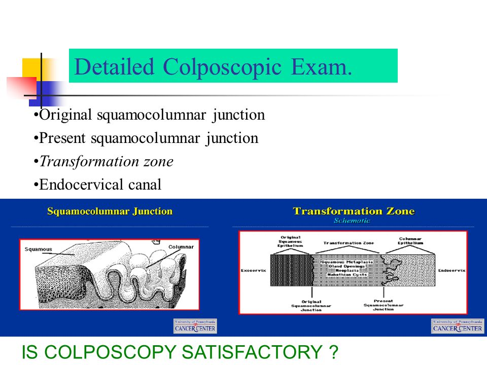 Detailed Colposcopic Exam.
