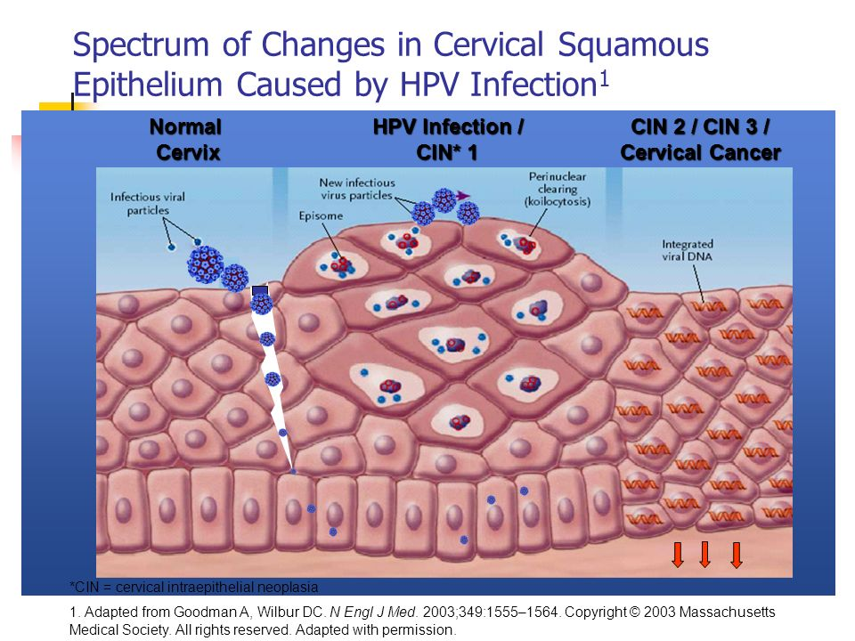 Spectrum of Changes in Cervical Squamous Epithelium Caused by HPV Infection1