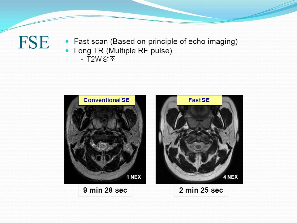 FSE Fast scan (Based on principle of echo imaging)
