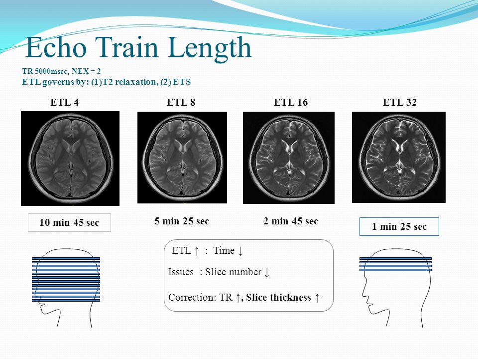 Echo Train Length ETL 4 ETL 8 ETL 16 ETL min 45 sec 5 min 25 sec