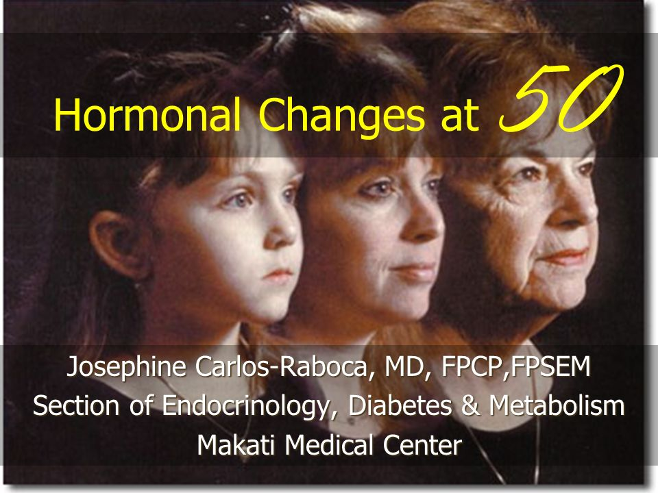 Hormonal Changes at 50 Josephine Carlos-Raboca, MD, FPCP,FPSEM