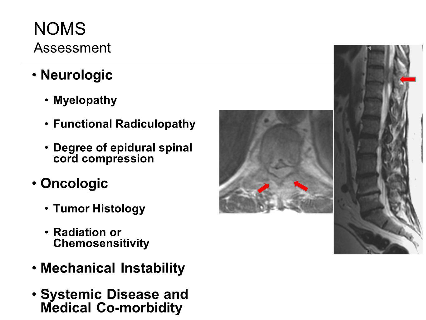 NOMS Assessment Neurologic Oncologic Mechanical Instability