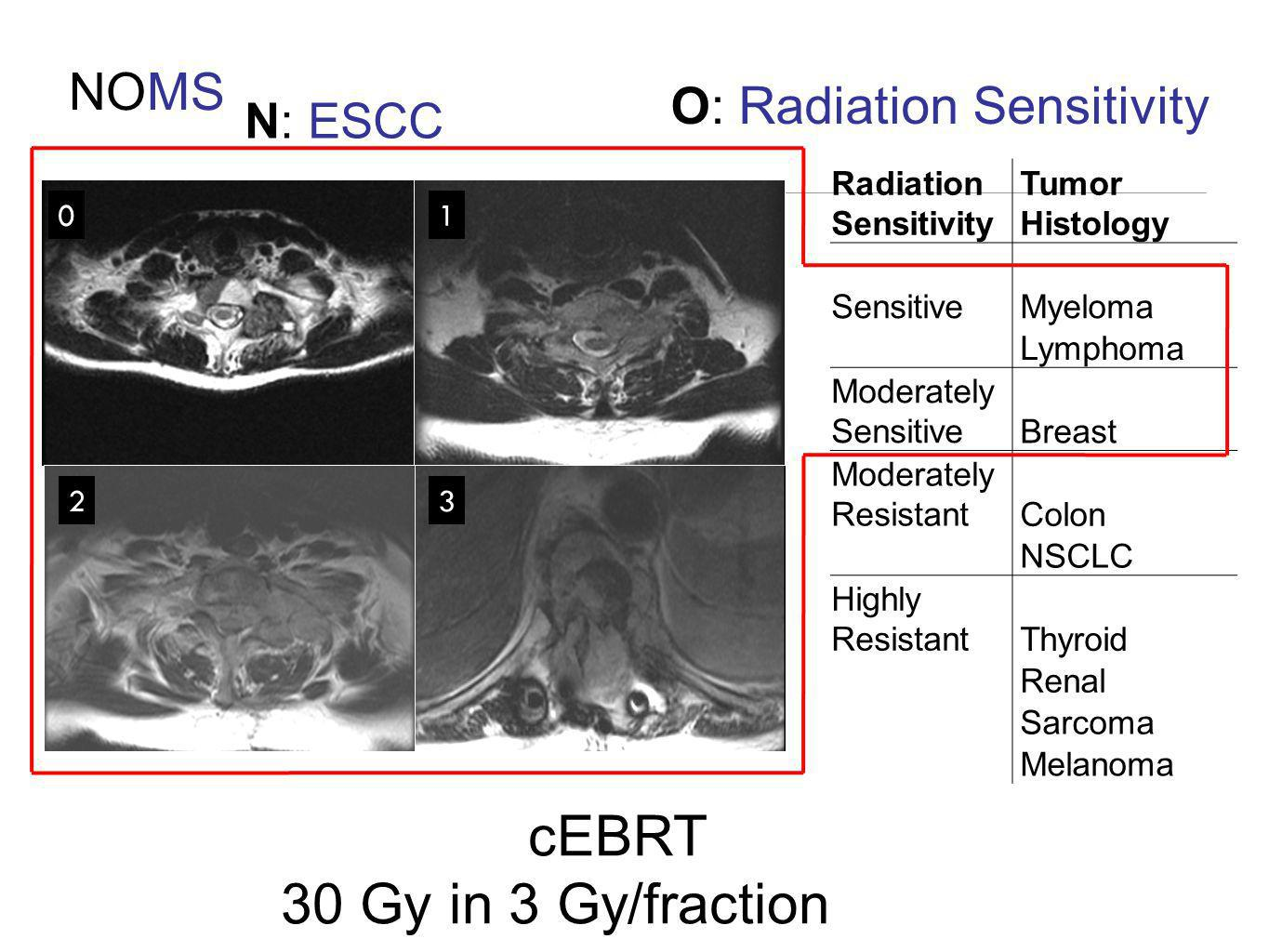 O: Radiation Sensitivity
