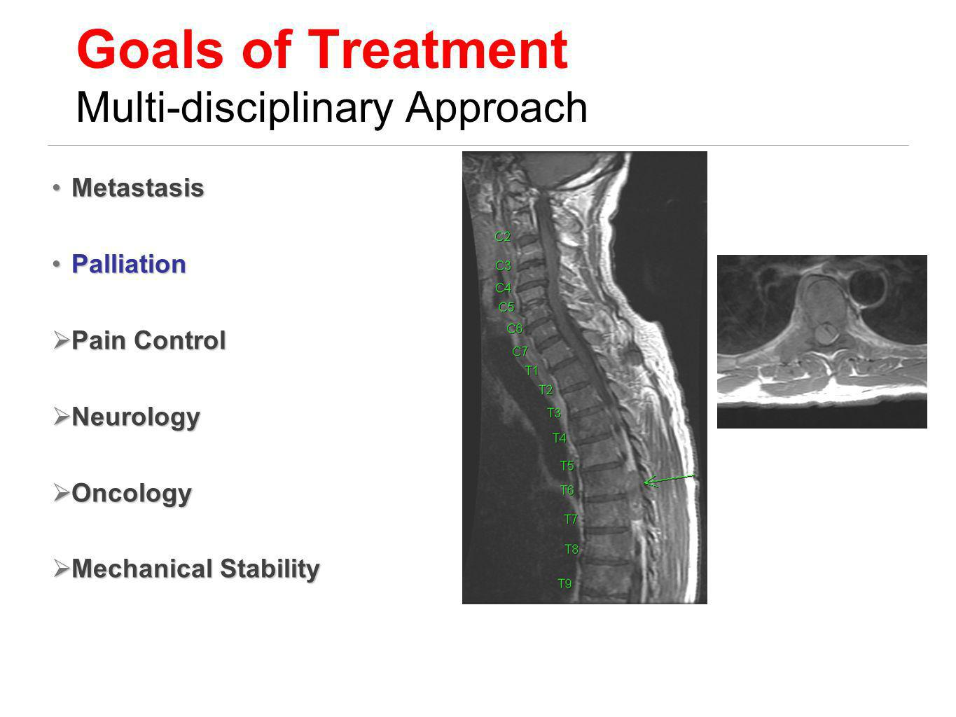 Goals of Treatment Multi-disciplinary Approach
