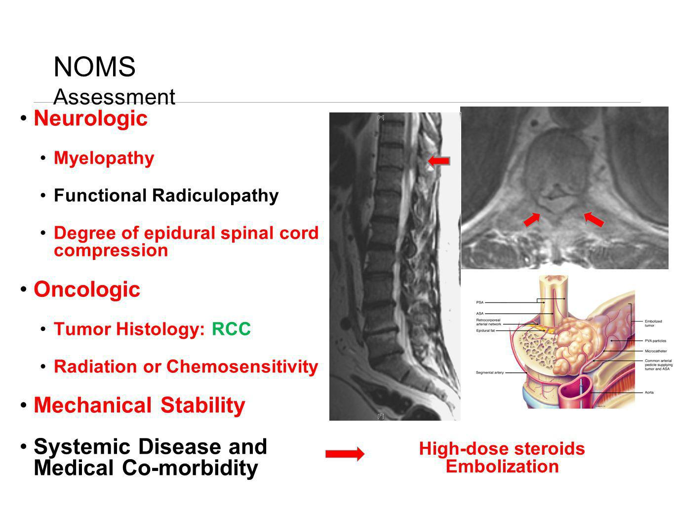 NOMS Assessment Neurologic Oncologic Mechanical Stability