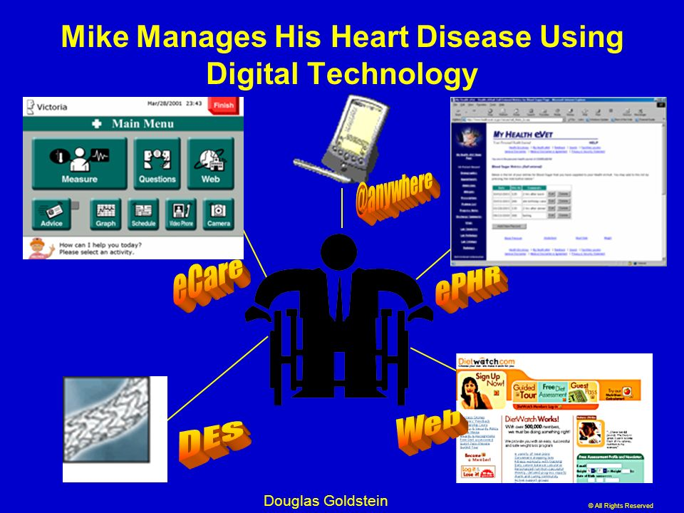 Mike Manages His Heart Disease Using Digital Technology