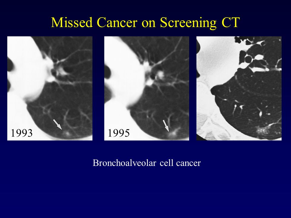 Missed Cancer on Screening CT