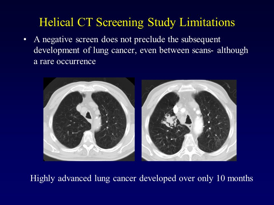 Helical CT Screening Study Limitations