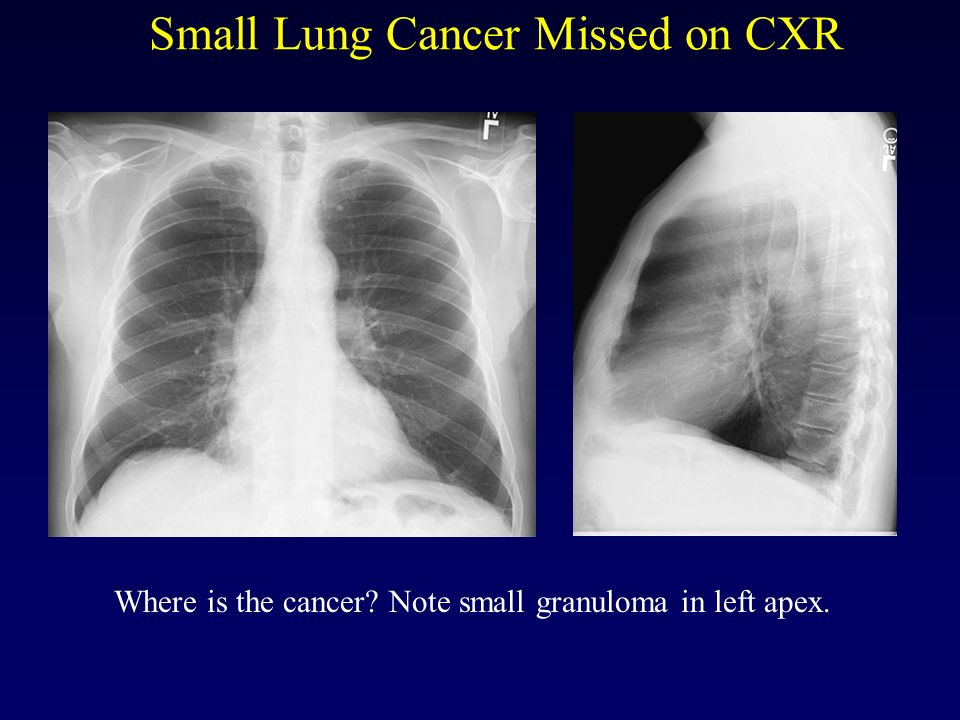 Small Lung Cancer Missed on CXR