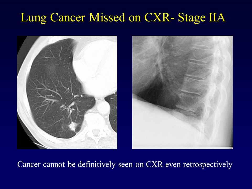 Lung Cancer Missed on CXR- Stage IIA