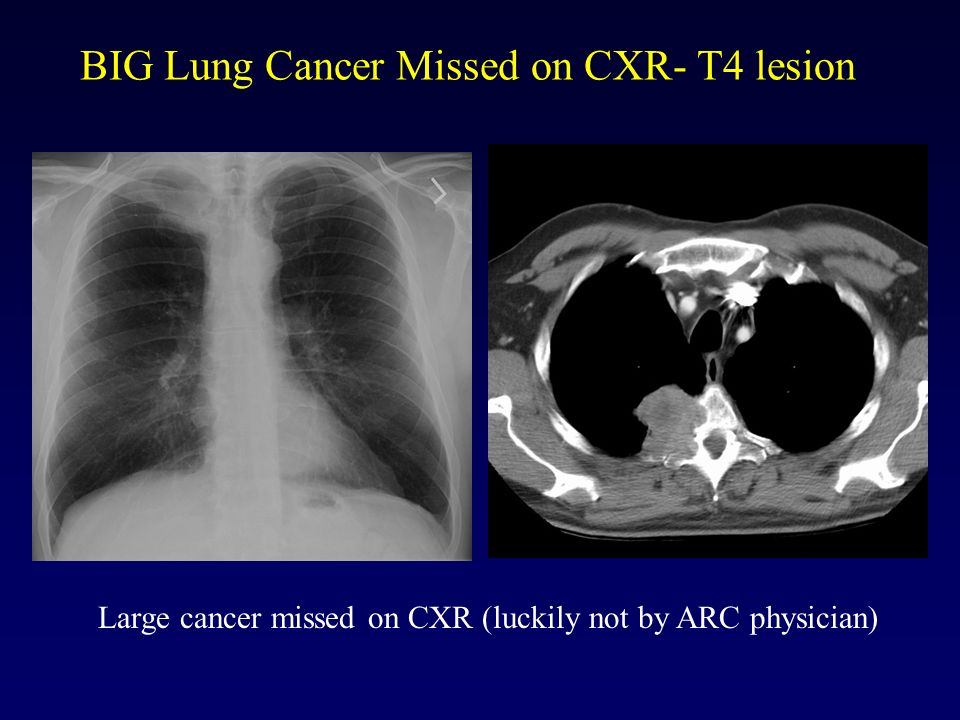 BIG Lung Cancer Missed on CXR- T4 lesion