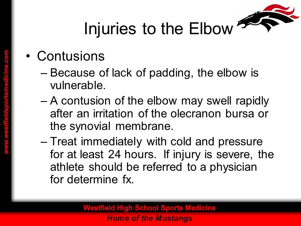 Injuries to the Elbow Contusions