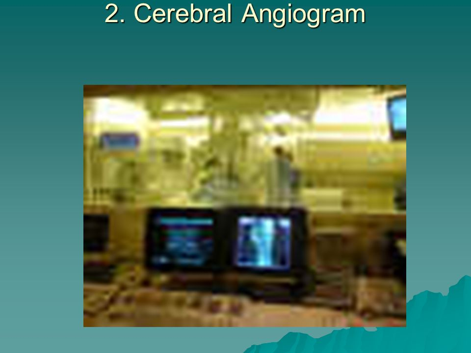 2. Cerebral Angiogram