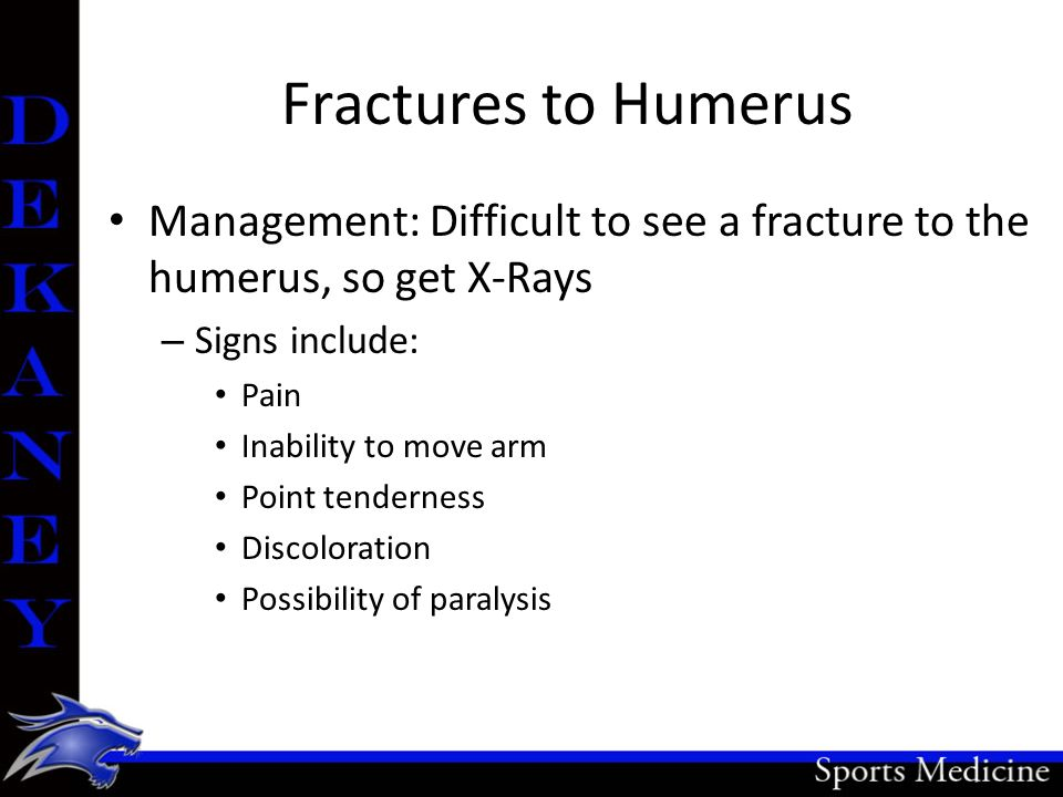 Fractures to Humerus Management: Difficult to see a fracture to the humerus, so get X-Rays. Signs include: