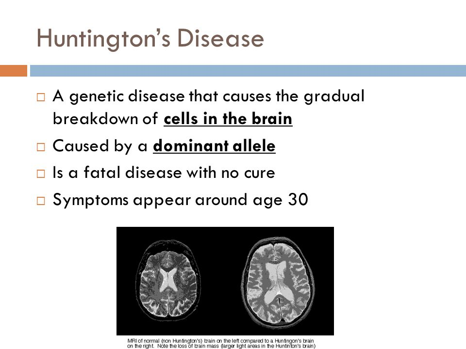 Huntington's Disease A genetic disease that causes the gradual breakdown of cells in the brain. Caused by a dominant allele.