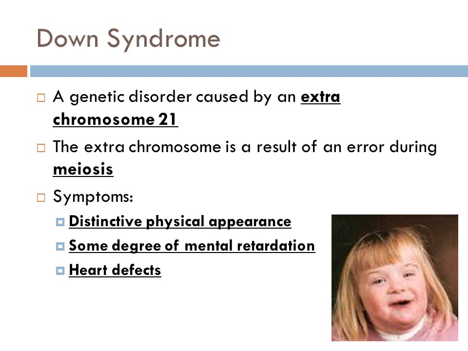 Down Syndrome A genetic disorder caused by an extra chromosome 21
